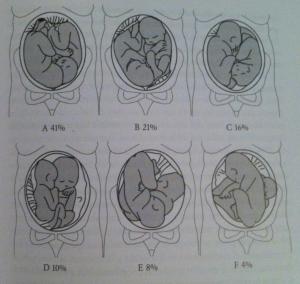colocacion fetos embarazo gemelar