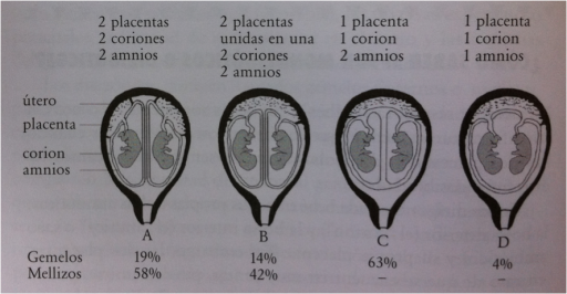 Tipos embarazo multiple segun placenta